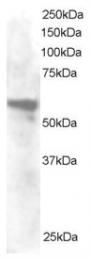 AP15965PU-N - Annexin A11 / ANXA11