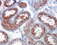 AP15970PU-N - RACGAP1