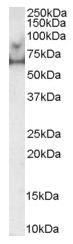 AP15995PU-N - MARK4