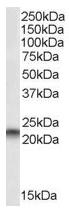 AP16002PU-N - PEBP1 / RKIP