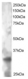 AP16018PU-N - Tetraspanin-32 (TSPAN32)