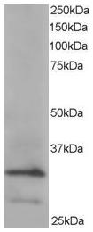 AP16020PU-N - ARPC2 / ARC34