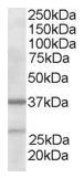 AP16021PU-N - ARPC1B / ARC41