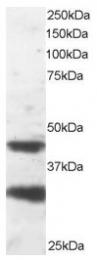AP16022PU-N - PAFAH1B1 / LIS1