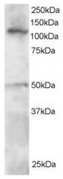 AP16023PU-N - SMARCA3 / HLTF