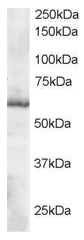 AP16041PU-N - Thioredoxin reductase 1 / TXNRD1