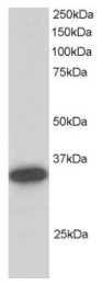AP16043PU-N - Carbonyl reductase 1