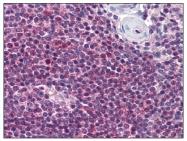 AP08264PU-N - Nicotinic acid receptor 2