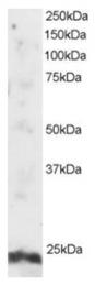 AP16053PU-N - ARL4A