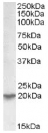 AP17068PU-N - UXT / HSPC024