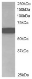 AP16067PU-N - CDT1