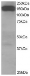 AP16074PU-N - Dynactin subunit 1