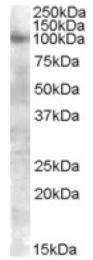 AP17005PU-N - CD332 / FGFR-2