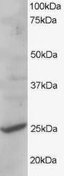 AP16076PU-N - CYB561D2