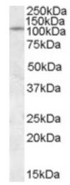 AP17015PU-N - PTPRN