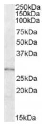 AP17018PU-N - LYPLAL1