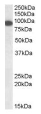 AP16082PU-N - ERC1 / ELKS