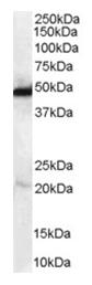 AP16086PU-N - NDRG1