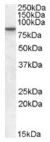AP16088PU-N - SETDB2 / CLLD8