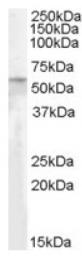 AP17032PU-N - PNPLA2 / ATGL