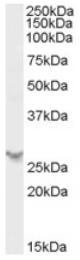 AP17035PU-N - PSME2 / REG-beta