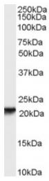 AP17043PU-N - RBP4