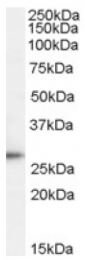 AP17061PU-N - TPD52