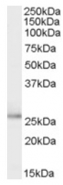 AP17062PU-N - Tumor protein D53 (TPD52L1)