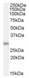 AP17063PU-N - Tumor protein D54 (TPD52L2)