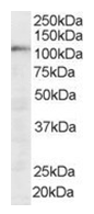 AP16093PU-N - SART1