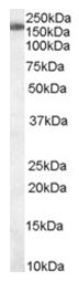 AP16094PU-N - SART3 / TIP110