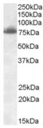 AP16946PU-N - Delta-like protein 1
