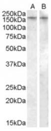 AP16951PU-N - Vasopressin V1b receptor (V1bR)