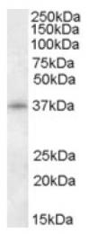 AP16958PU-N - CDK10