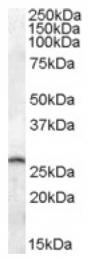 AP16966PU-N - Phosphoserine phosphatase