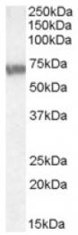 AP16970PU-N - ABCD4 / PXMP1L