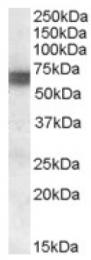 AP16981PU-N - BIN1 / AMPHL