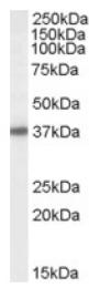 AP16982PU-N - BPNT1