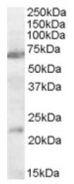 AP16990PU-N - Neuronal acetylcholine receptor subunit alpha-4