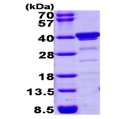 AR09260PU-L - Biliverdin reductase A