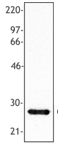 AP08403PU-N - C-reactive protein (CRP)