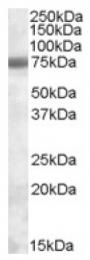 AP16845PU-N - EXOSC9