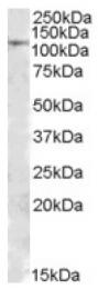 AP16853PU-N - MTHFD1