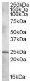AP16854PU-N - PLEKHB1