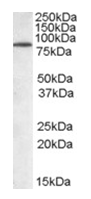 AP16111PU-N - TRIM3 / BERP