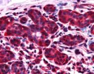 AP16112PU-N - NIF3L1