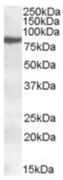 AP16861PU-N - ALOX15 / LOG15