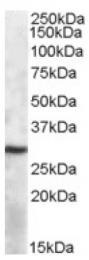 AP16862PU-N - APOBEC1