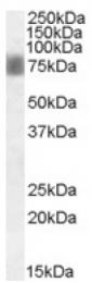 AP16889PU-N - NUAK1 / ARK5