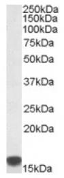 AP16894PU-N - S100A9 / Calgranulin-B / MRP14